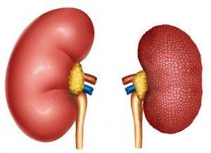 Nefropatia diabetica – complicatie majora a diabetului zaharat. Importanta controlului nefrologic