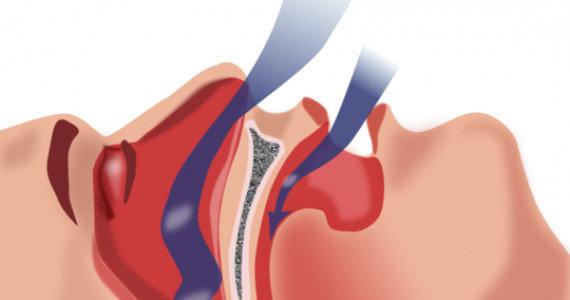 sforaitul-simptome-tratament